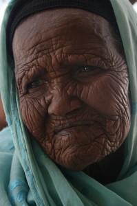 קמטים - נוצרים על ידי חשיפה לשמש, שינויי גיל והפעלת שרירי הבעה