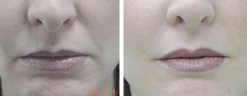 הזרקות בוטוקס לטיפול בקמטים סביב הפה