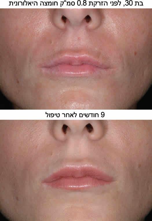 חומצה היאלורונית - לפני ואחרי הזרקה לשפתיים