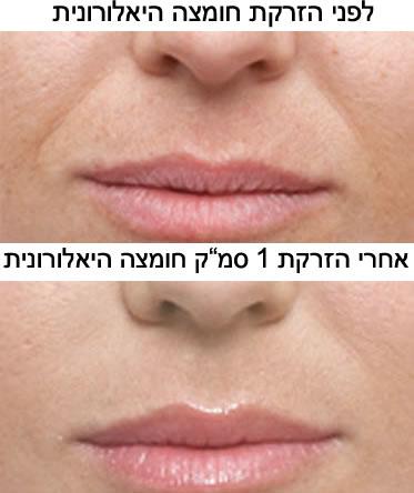 חומצה היאלורונית - לפני ואחרי הזרקה לקמטים לצדי האף