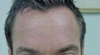 קמטים במצח שבועיים לאחר הזרקת בוטוקס - מנוחה