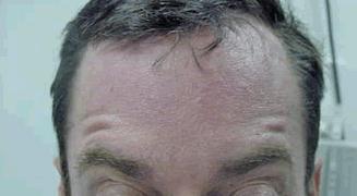 קמטים במצח לאחר טיפול רביעי עם בוטוקס
