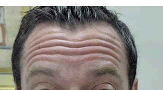 לפני הזרקת בוטוקס במצח - הרמת גבות